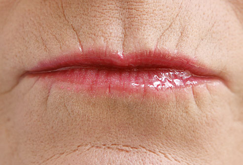 webmd_rf_photo_of_lips_close_up